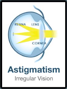 astigmatism eye surgery las vegas