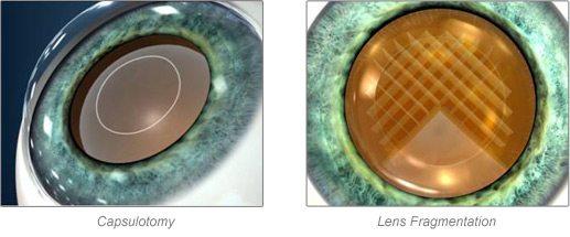 laser assisted cataract surgery las vegas